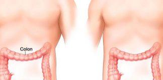 El càncer de còlon podria prevenir-se fins a un 90% si es diagnostica precoçment